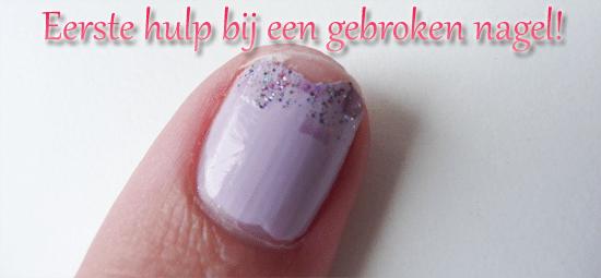 Eerste hulp bij een gebroken nagel!