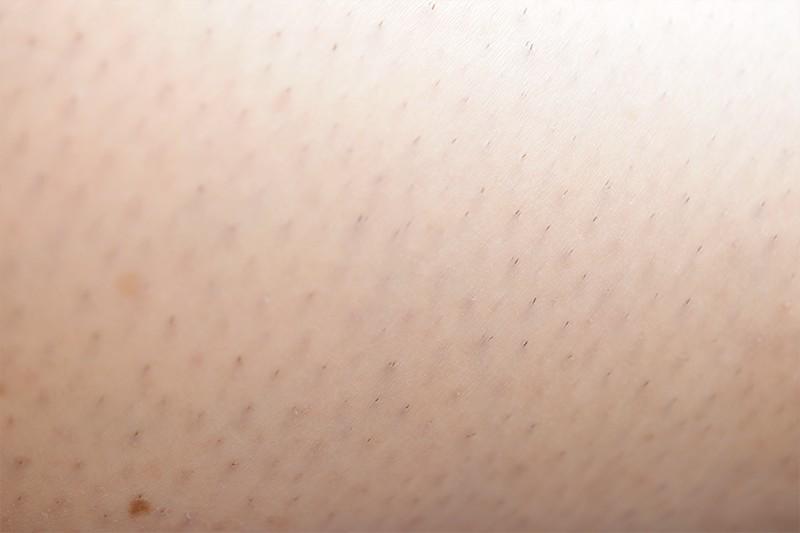 Kruidvat Anti-Haargroei Serum