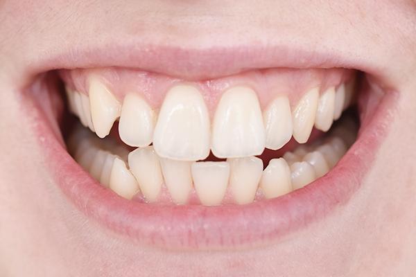 Oral-B 3D White Whitening Therapy – werkt het?