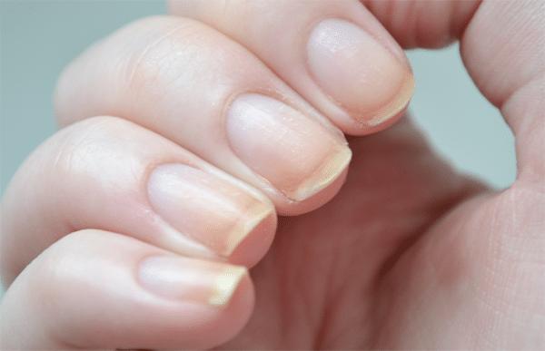 Beschadigde nagels repareren